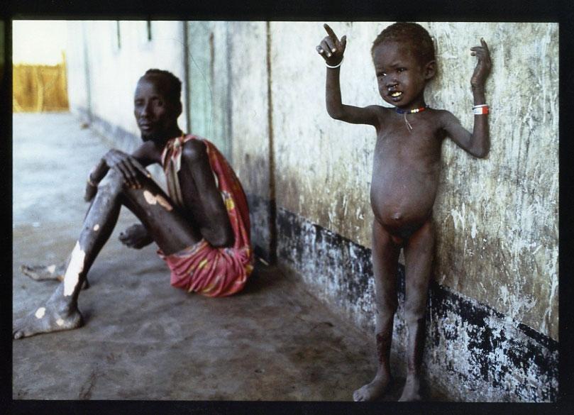Chual Deng y la hija de Nyadak, en la aldea de Ayod, marzo de 1993 - Fotografía de Kevin Carter