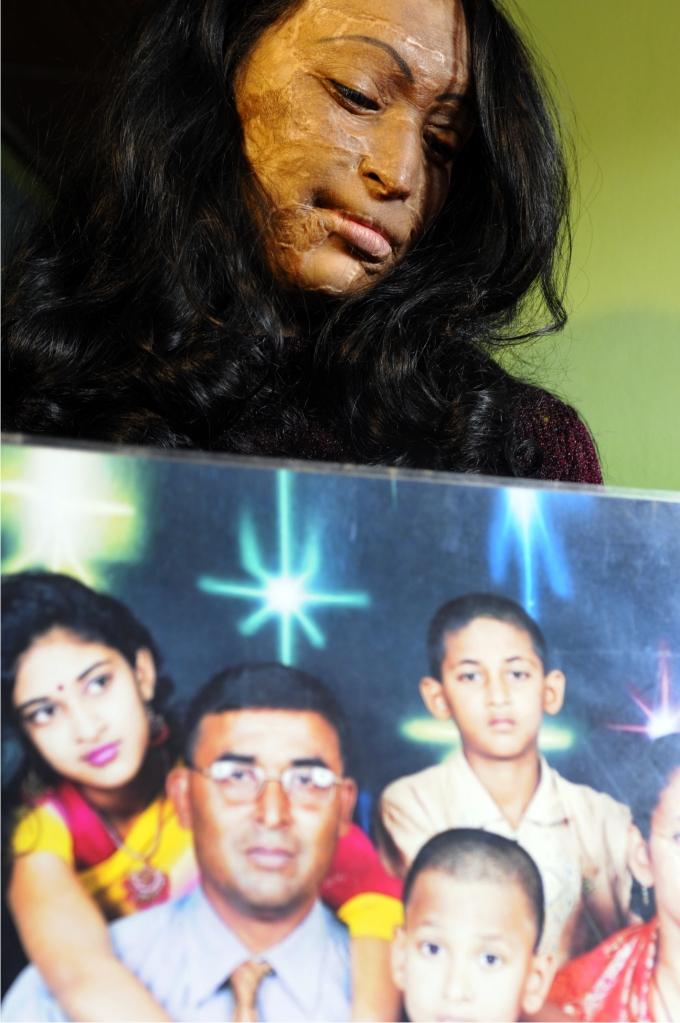 Neelu posa con una foto de familia antes del ataque con ácido que sufrió.