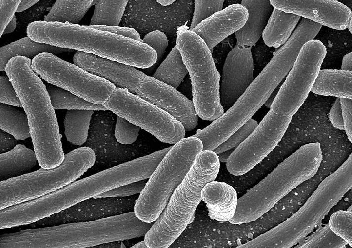 Micrografía al microscopio electrónico de barrido de células de Escherichia coli. Foto: Rocky Mountain Laboratories, NIAID, NIH (DP)