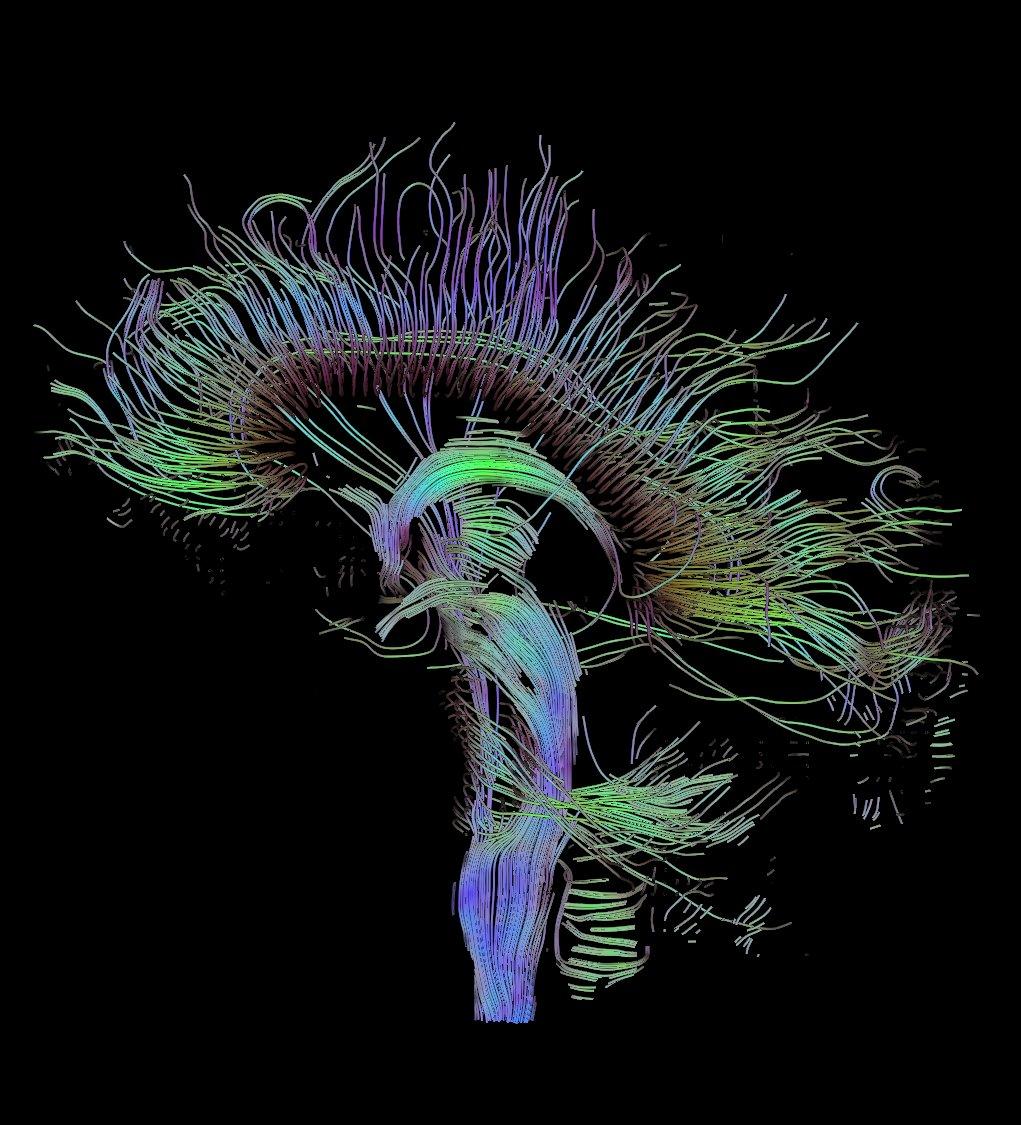 El cerebro, los caminos alucinantes de la comunicación neuronal (Thomas Schultz, CC).