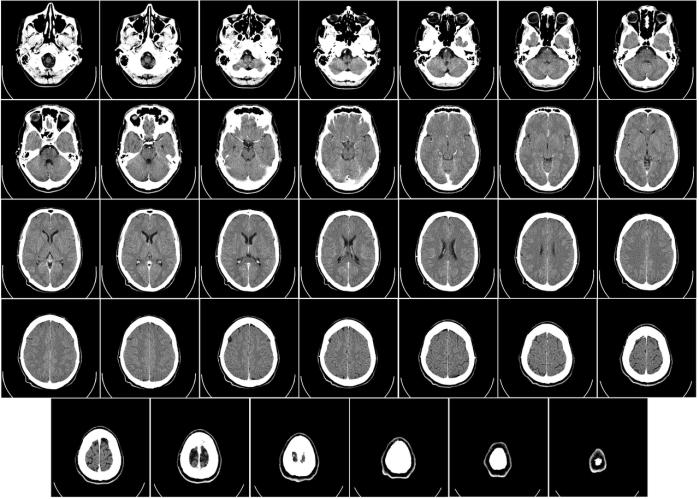 Cortes cerebrales, Ct Scan. Imagen: Mikael Häggström (CC)