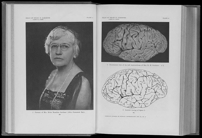 Helen Hamilton Gardener y su cerebro. Imagen: Wellcome Images (CC)