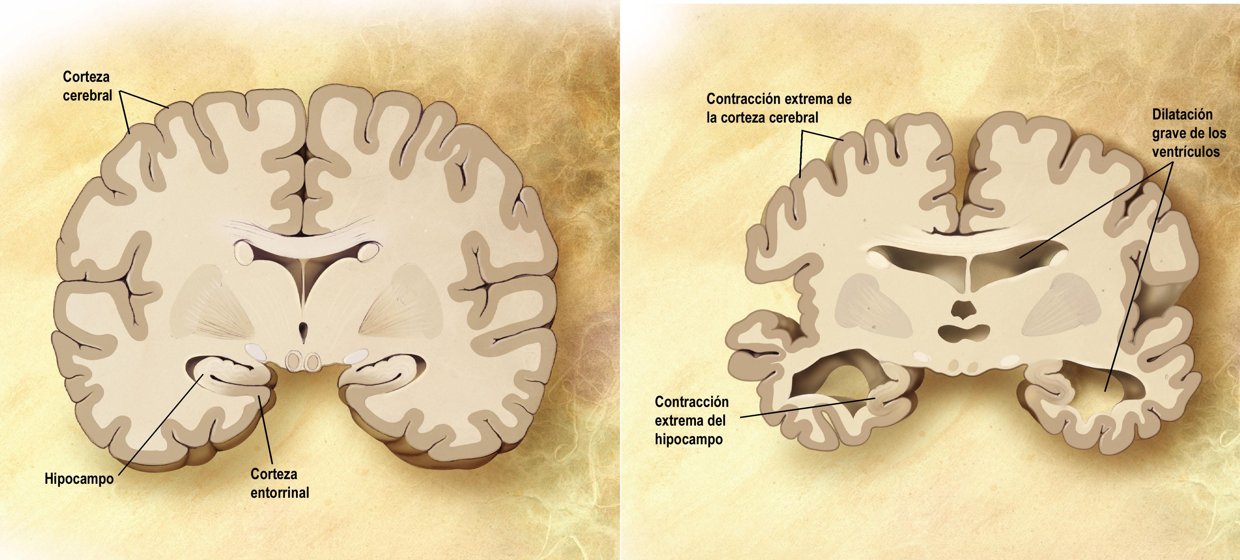 Esquema de un corte frontal de dos cerebros. A la izquierda un cerebro sano y a la derecha uno que padece alzhéimer. Imagen: DP