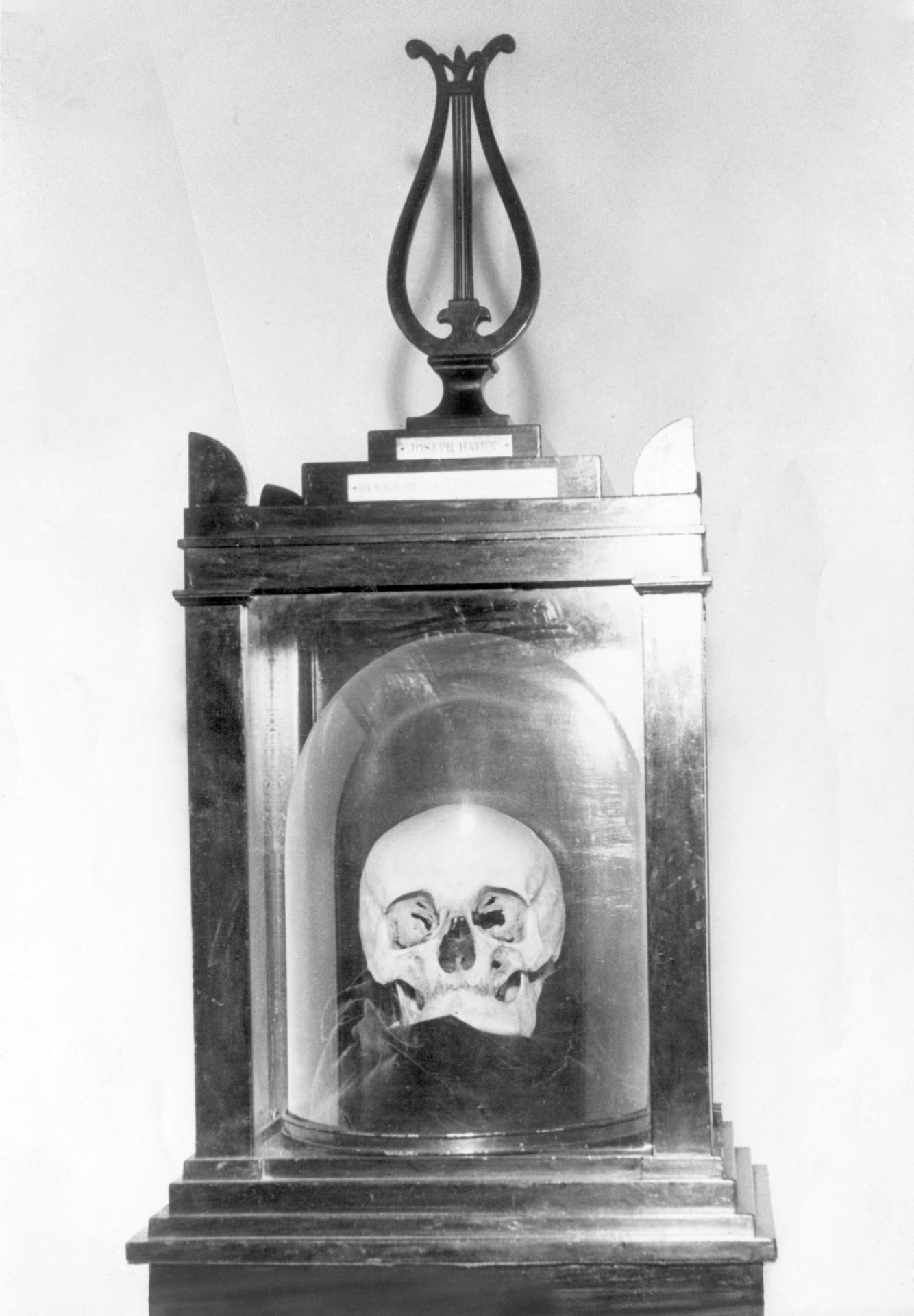 Cráneo de Franz Josef Hadyn. Imagen: Corbis