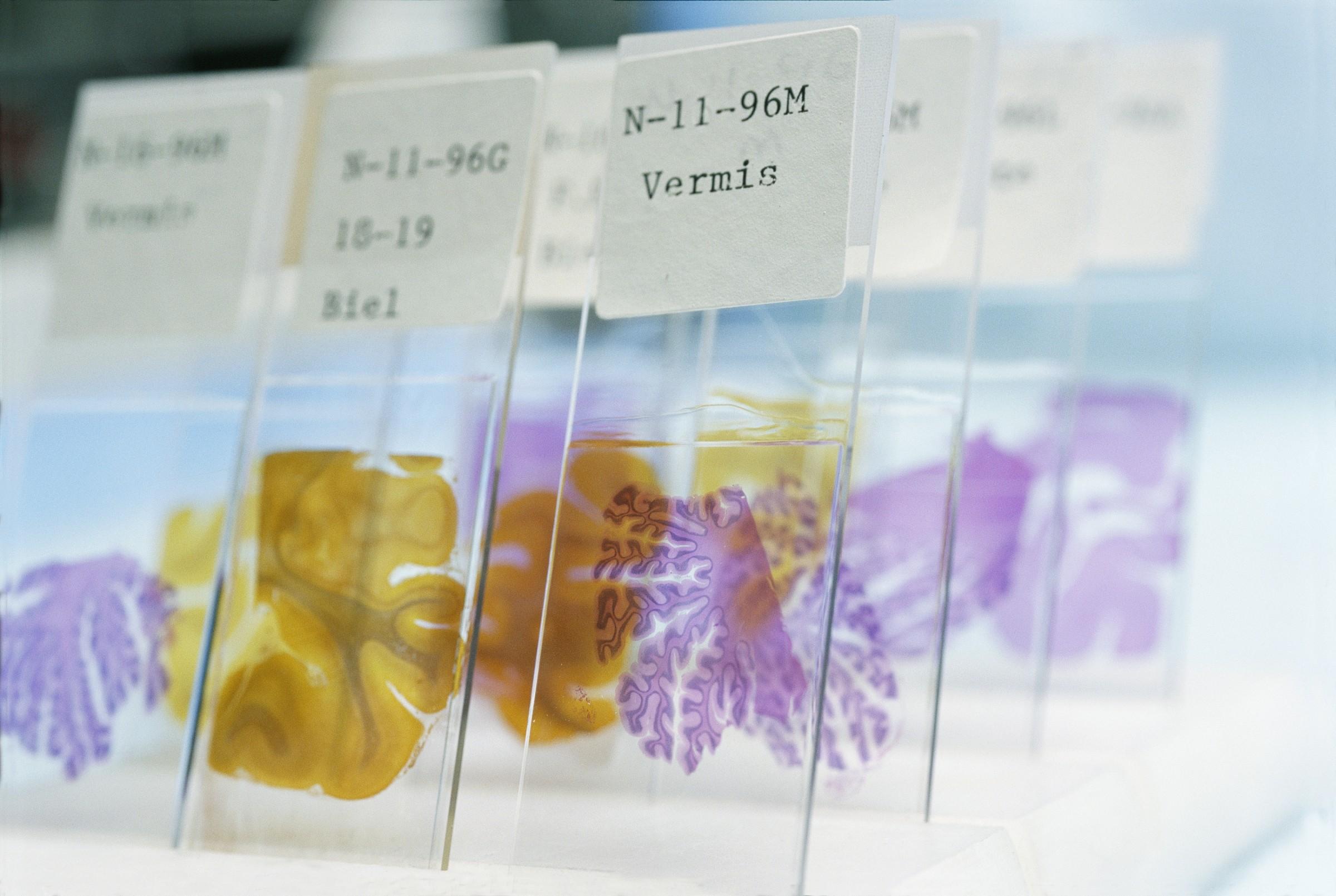 Muestras de tejido cerebral utilizadas el estudio de la enfermedad de Alzhéimer. Fotografía: Corbis
