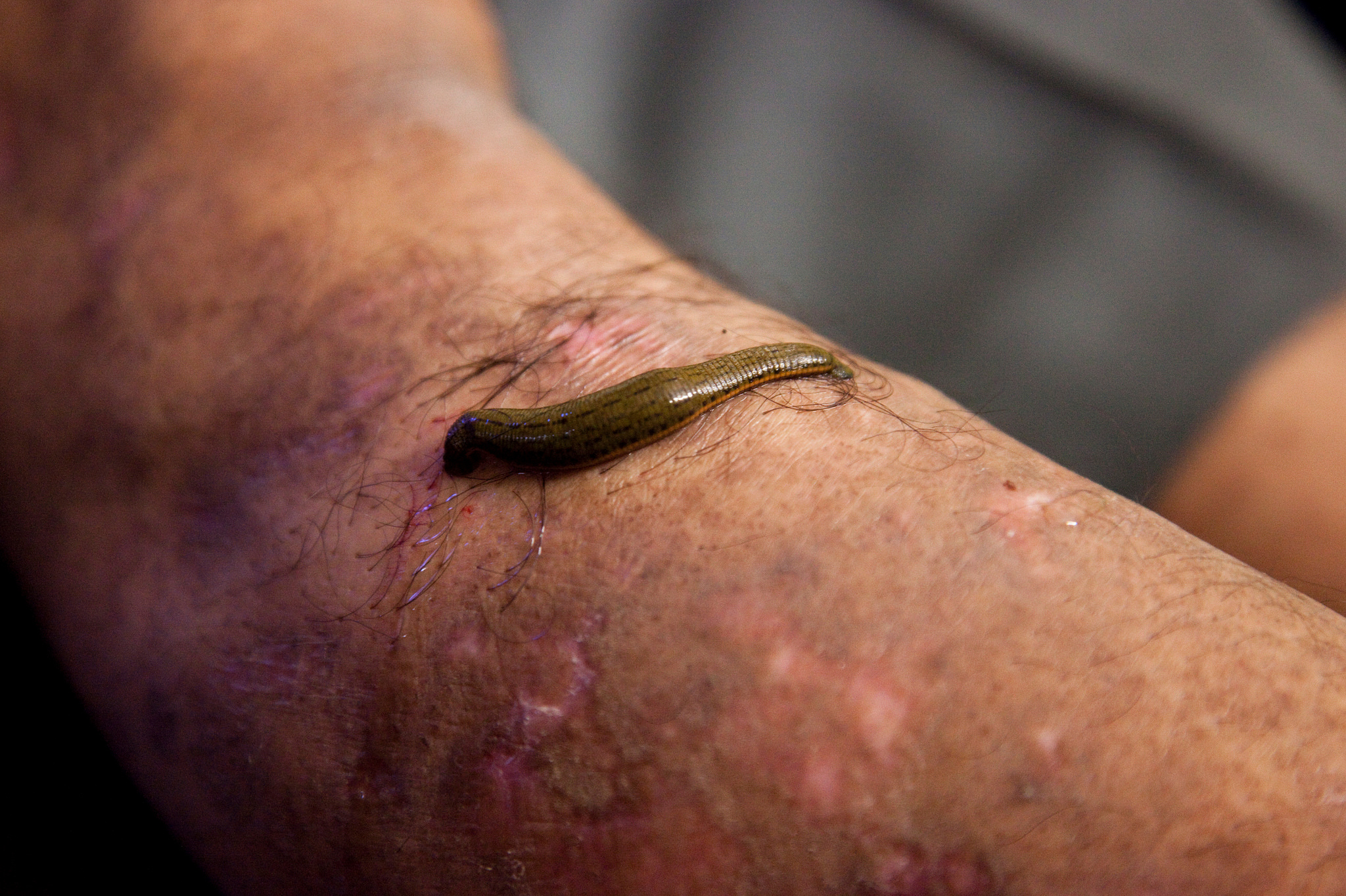 Sanguijuela medicinal. Fotografía: Bhopal Medical Appeal (CC)