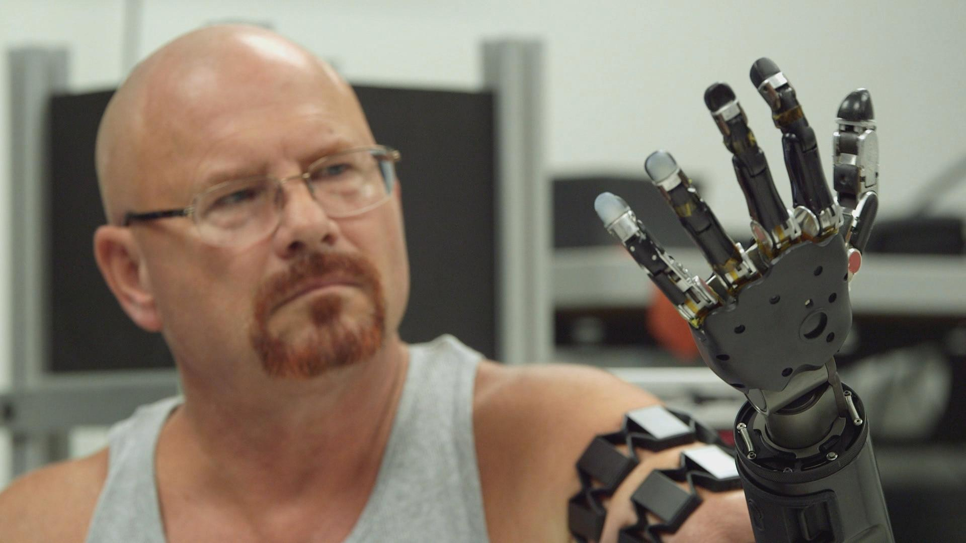 Johnny-Matheny_robotic-prosthetic-arm