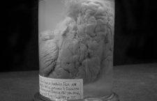Cerveau du nomme Leborgne, dit Tan, souffrant d'une incapacite d'ellocution due a une lesion (au centre haut de l'image) patient de l'Hopital Bicetre (Paris) sous la direction de Paul Broca (1824-1880). Ceci marque le debut de la phrenologie comme science , Cerveau conserve dans du formol au musee Dupuytren a Paris  ---  human brain of a man called Leborgne who suffered from inability to diction because of brain lesion (see on top center), he was treated at Bicetre hospital by Paul Broca (1824-1880). Beginning of  phrenology as a science. brain in formalin kept at Dupuytren museum in Paris *** Local Caption *** human brain of a man called Leborgne who suffered from inability to diction because of brain lesion (see on top center), he was treated at Bicetre hospital by Paul Broca (1824-1880). Beginning of  phrenology as a science. brain in formalin kept at Dupuytren museum in Paris
