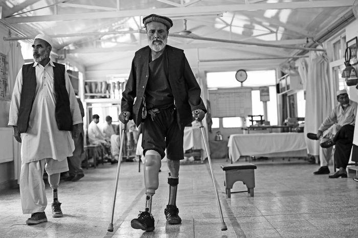 Foto 14 Paciente Ortho en Kabul Serralvo